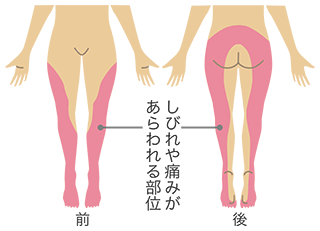 坐骨神経痛のしびれや痛みがあらわれる部位